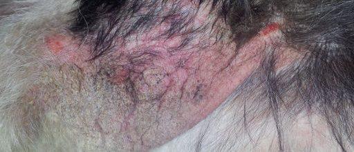 Dermatita Alergică la Mușcătura de Purice